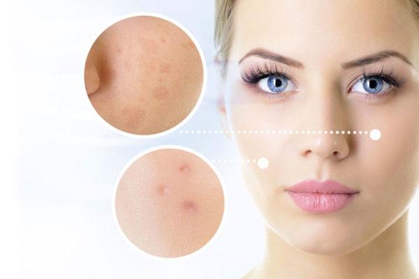 centro estetico doctora esteban manchas piel